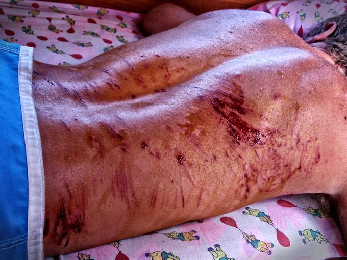 scar reef cuts