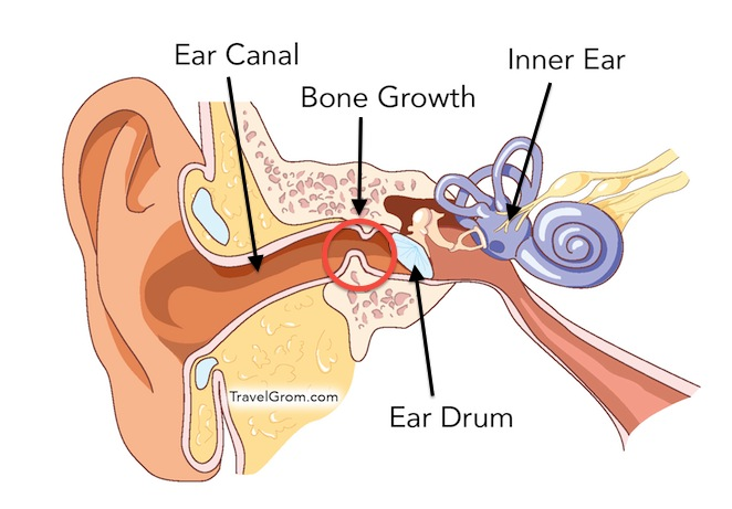 Diagram of inside your ear auto electrical wiring diagram surfer s ear symptoms causes and treatment travelgrom com rh travelgrom com human ear diagram ear cilia ccuart Gallery